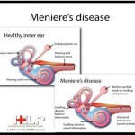Define Meniere's disease &  its etiology, clinical features & management.