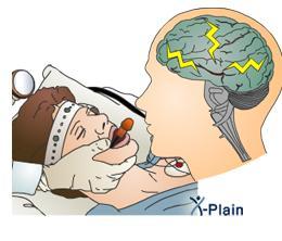 Electro Convulsive therapy                                     Electro Convulsive therapy