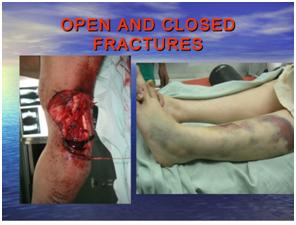 Open and Closed Fractures