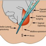 Definition and  Objectives of EPISIOTOMY