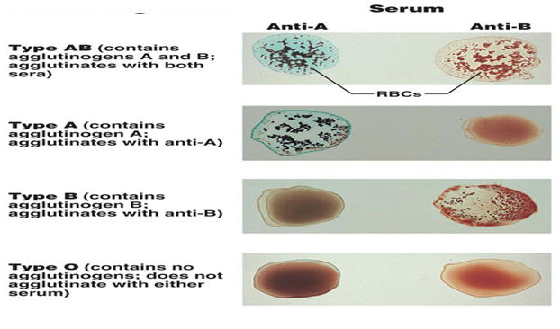 blood agglutination A hemagglutination/blood typing (an agglutination reaction): ( prescott, et al, page 650) human red blood cells (erythrocytes) have many glycoprotein and glycolipid components on their cell membrane surfaces that have antigenic properties.