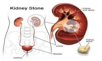 Kidney Stones: Causes & Treatment